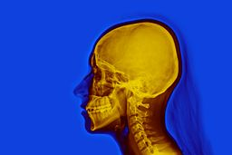 Rad_1706-2_False_color_skull_nevit